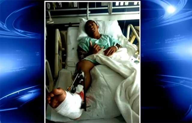 Marc Riglos en el hospital después de un ataque de tiburón