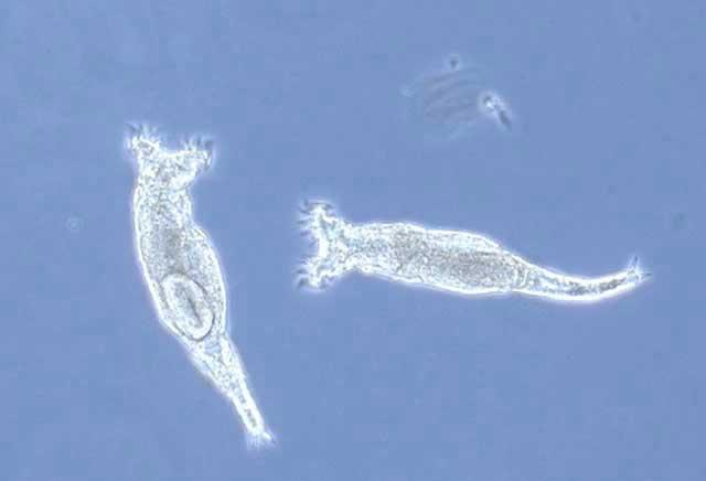 rotífero bdelloidea