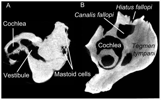hueso petroso fósil de manatí, radiografía
