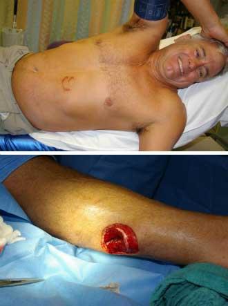 heridas a Mike Spalding hechas por un tiburón cortador de galletas