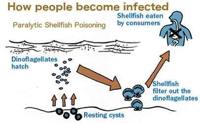 intoxicación paralizante por mariscos