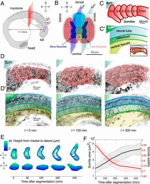 patrones de chevron en el miotoma
