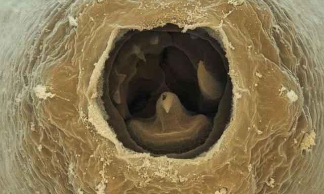 escaner de la boca de un nematodo Pristionchus