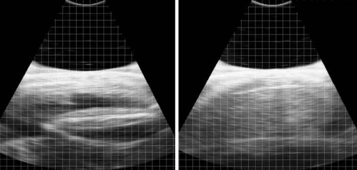 ecografía del feto de una manta raya