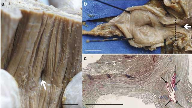 complejo pulmonar en el Latimeria chalumnae
