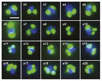 células de coroplastos a la luz verdosa