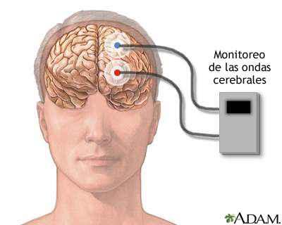 monitor de ondas cerebrales (ABR)