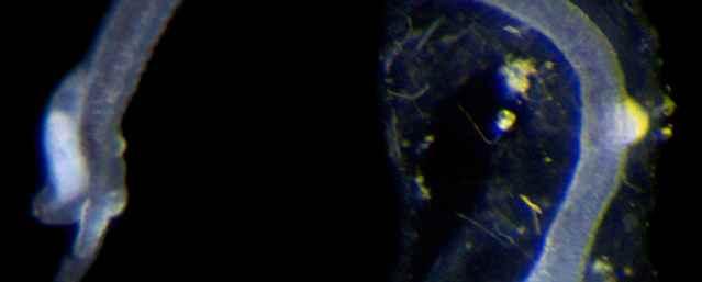 Singulares nuevas especies de gusanos marinos ha invertido su propia evolución